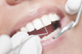 malattia denti, gengivite, parodontite